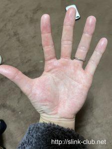 20代男性の手のひら画像左手